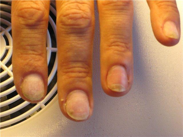 Грибок на ногте руки как лечить