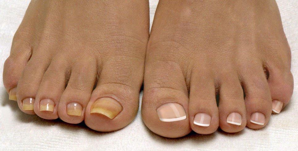 Наращивание ногтей на ногах - красота в летнем сезоне