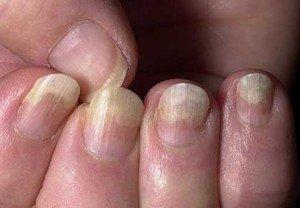 Причины возникновения и способы лечения расслоения ногтей