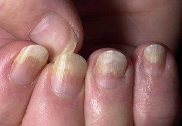 Как называется врач который лечит ногти на ногах
