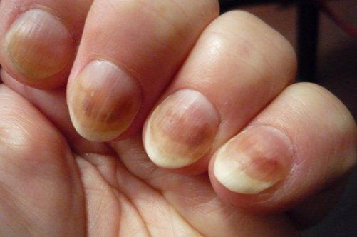 Чем действительно можно вылечить грибок ногтей