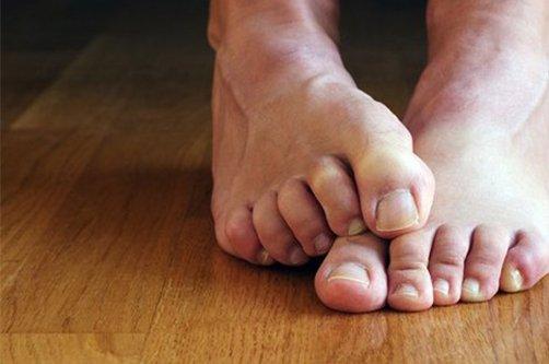 Ноготь врос в палец