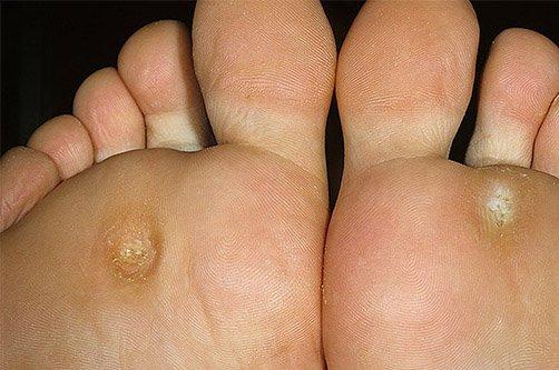 стержневая мозоль на ноге фото