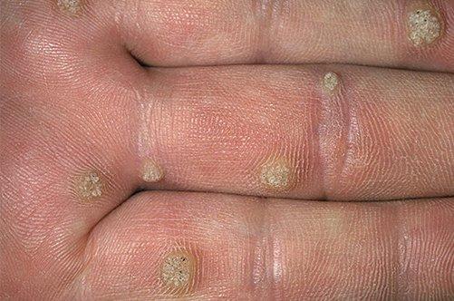 средство против глистов у человека