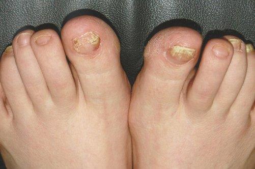 Таблетки против грибка ногтей на ногах отзывы