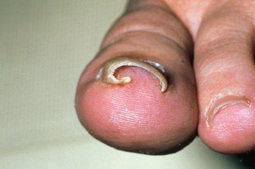 На ногах ногти закручиваются