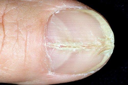 Онихомикоз ногтей лечение только лаком