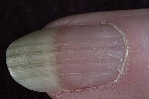 какое средство профилактики от глистов