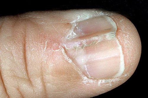 Лечение грибка на ногте препараты