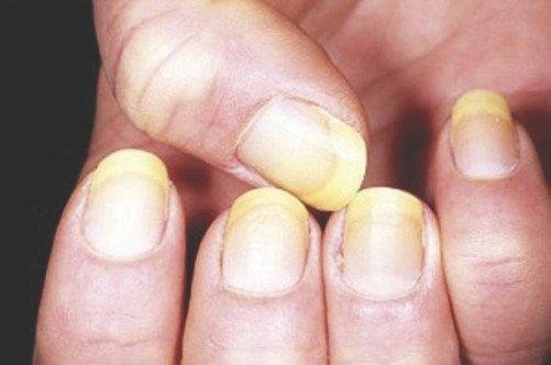 Какое средство от грибка ногтей лоцерил