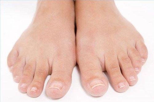 onihomikoz-nogtey-na-nogah-lechenie-preparati