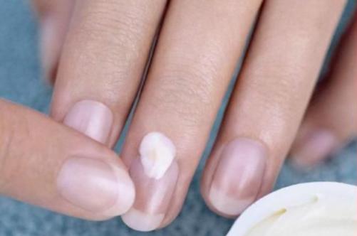 Анализ на грибок ногтей чебоксары