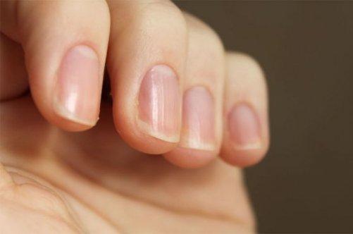 Продольные борозды на ногтях рук причины 16
