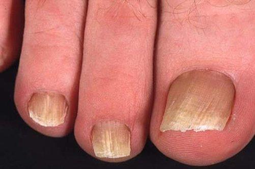 Быстрое лечение от грибка на ногтях ноги народные средства