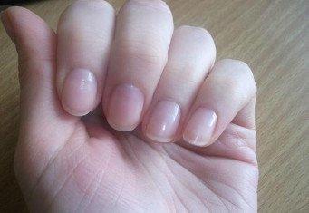 Обгрызенные ногти красивые
