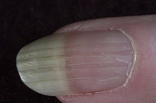 Грибок ногтей. Грибковые заболевания ногтей: симптомы 12