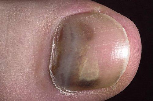 Чем вылечить грибок ногтей на ногах фото