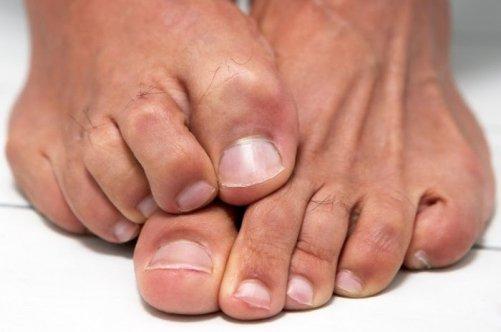 Как размягчить ногти на ногах у пожилых людей в домашних условиях