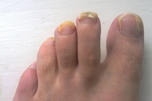 Уротропин от грибка стопы отзывы - О грибке ногтей