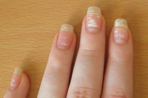 Почему на ногтях появляются черные полоски на