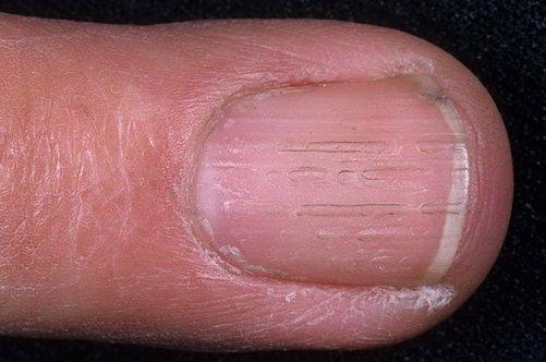 Фото грибок на ногте рук