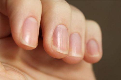 Как определить болезни по ногтям рук