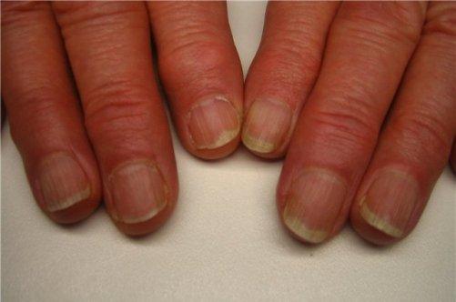 Народные средства лечения грибковых заболеваниях ногтей