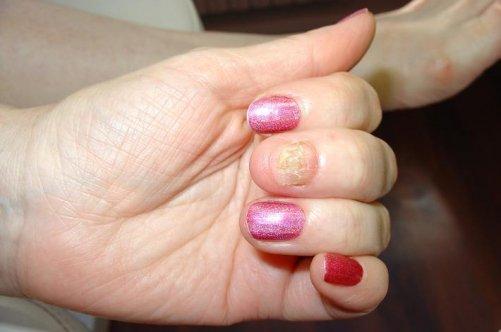 Псориаз ногтей причины признаки и лечение (фото видео)