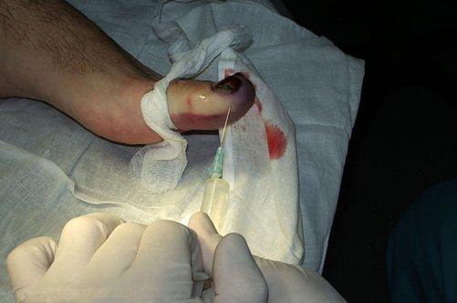 Мазь экзодерил от грибка ногтей отзывы цена аналоги