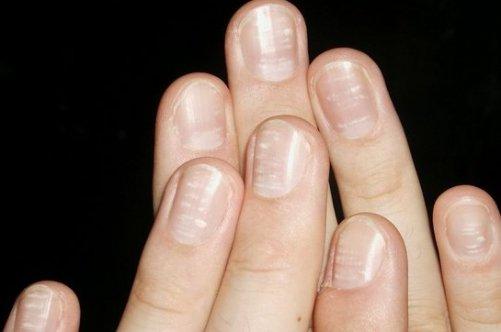 Грибок ногтей лазером цена екатеринбург