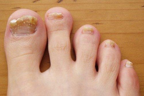 Какие таблетки от грибка ногтей и стоп лучшие