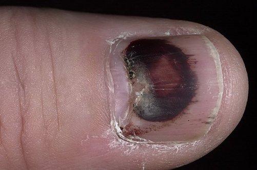 Лечение вросшего ногтя на тульской