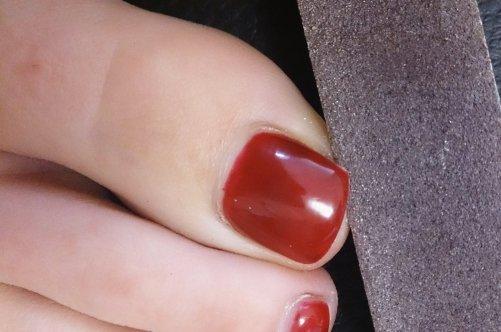 Международный сайт лечения грибка ногтей