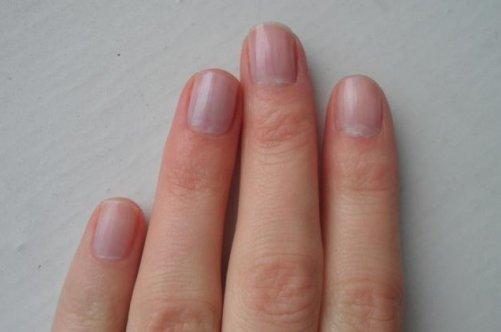 Ногти синие причины 54