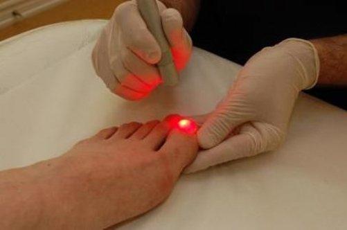 действия должны лечение вросшего ногтя лазером каждой команды