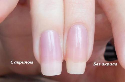 Как сделать акриловые ногти фото 469