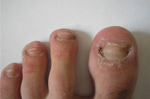 Лечения грибка ногтей народными способами