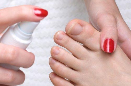 Вросший ноготь на ноге, на большом пальце - даление