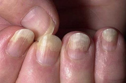 Как лечить от грибка на коже