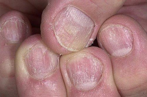 Микостоп средство от грибка ногтей