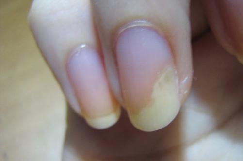 Флуконазол от грибка ногтя отзывы
