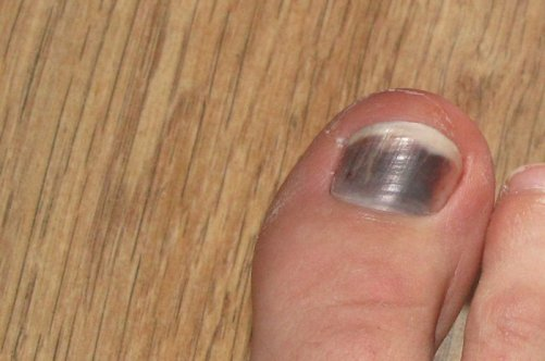 Лечить на дому грибок ног и ногтей