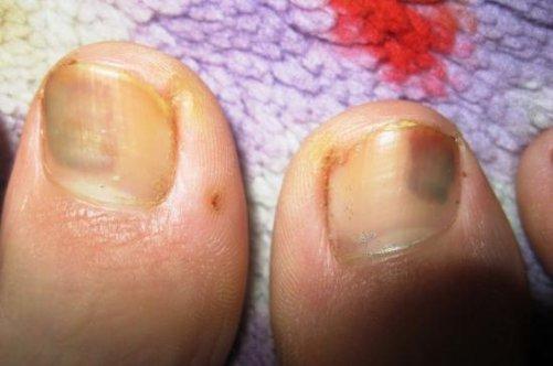 Можно ли чайным грибом лечить грибок на ногах