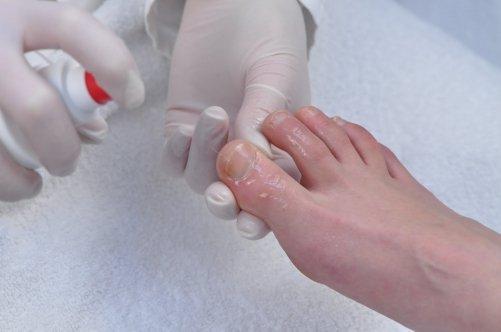 Крем лечение ногтей