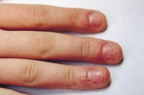 Как удалить народным способом грибок ногтях