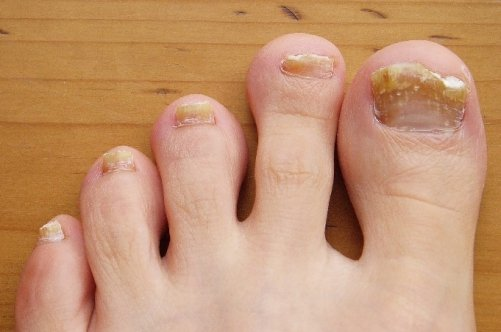 Желтые ногти на больших пальцах ног