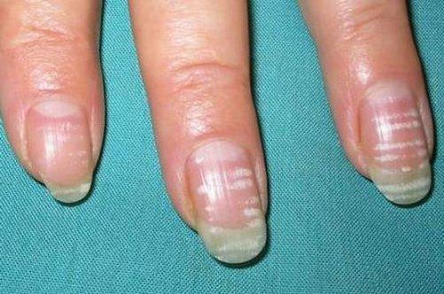 Болен ногтей рук